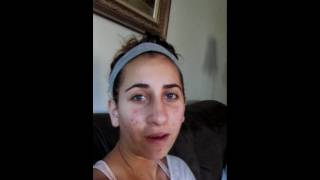 VLog of my Rhinoplasty Surgery, Recovery, #14