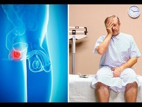 A prosztatagyulladás tünetei fiatal korban