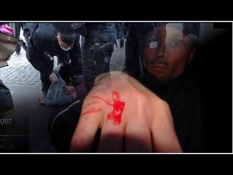 Schattenseite BRD: Zunehmende Polizeigewalt gegen Bürger ist besorgniserregend
