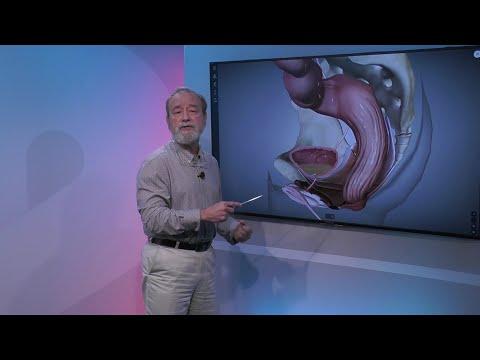 Diadens t a krónikus prosztatagyulladás kezelésére
