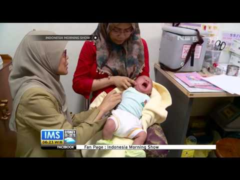 Video Pencegahan penyakit Polio - IMS