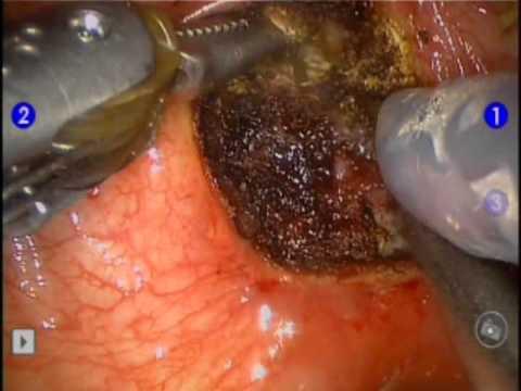 Il cancro alla prostata metastatizza al