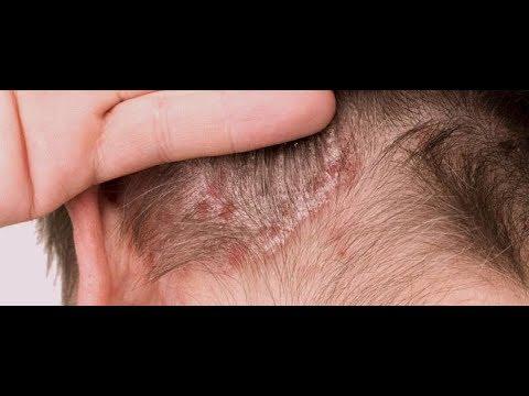 Il girasole di zucca semina a dermatite atopic
