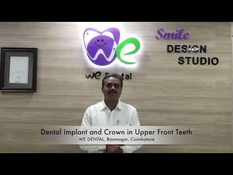 Testimonial from Parent about the dental specialist in coimbatore
