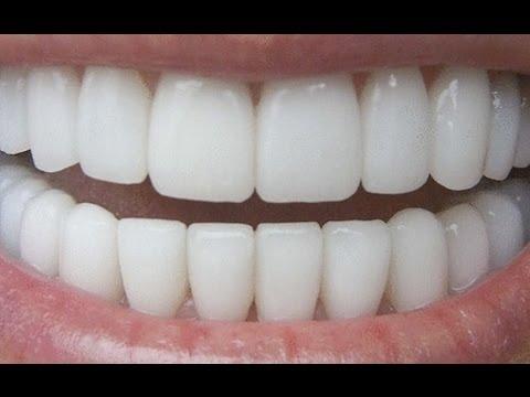 Whitening Teeth-The Organic way