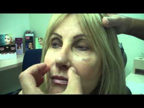 Revision Rhinoplasty 7 days Post-Op – Female Patient