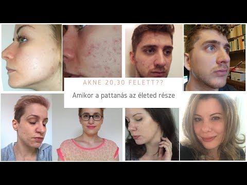 Népi gyógymódok az arcon lévő vörös foltok ellen
