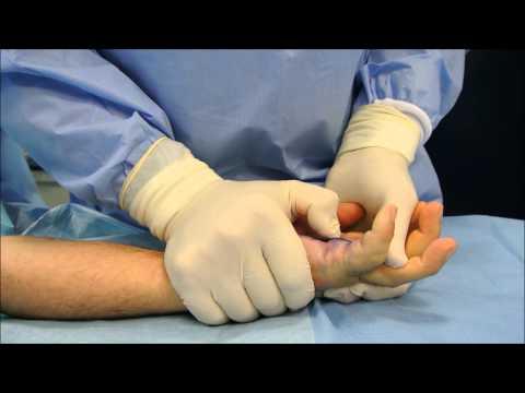 Sacrum osteochondrosis segni e trattamento