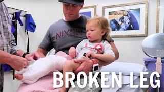 Getting a cast on her Broken leg!