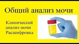 Общий анализ мочи (ОАМ), клинический анализ мочи.