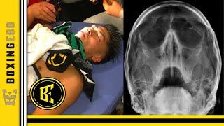 BREAKING! NONITO DONAIRE BROKE INOUE'S NOSE AND ORBITAL BONE IN CLASSIC