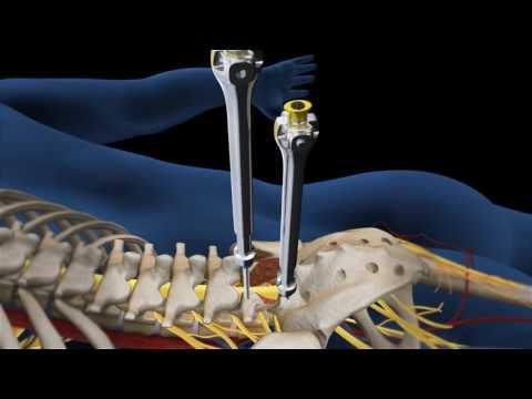 Unguent pentru inflamația genunchiului