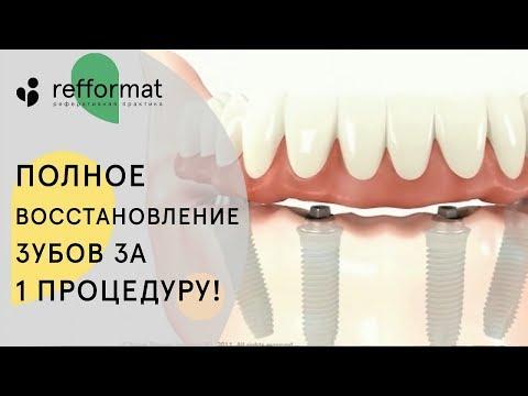 🤔 Как проходит имплантация зубов все на 4. Имплантация зубов все на 4. 12+