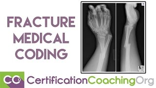 Help on Fracture Medical Coding
