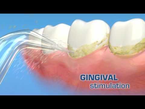 www.spazzolinodadenti.com presenta: WaterPik idropulsore New Dental Water Jet