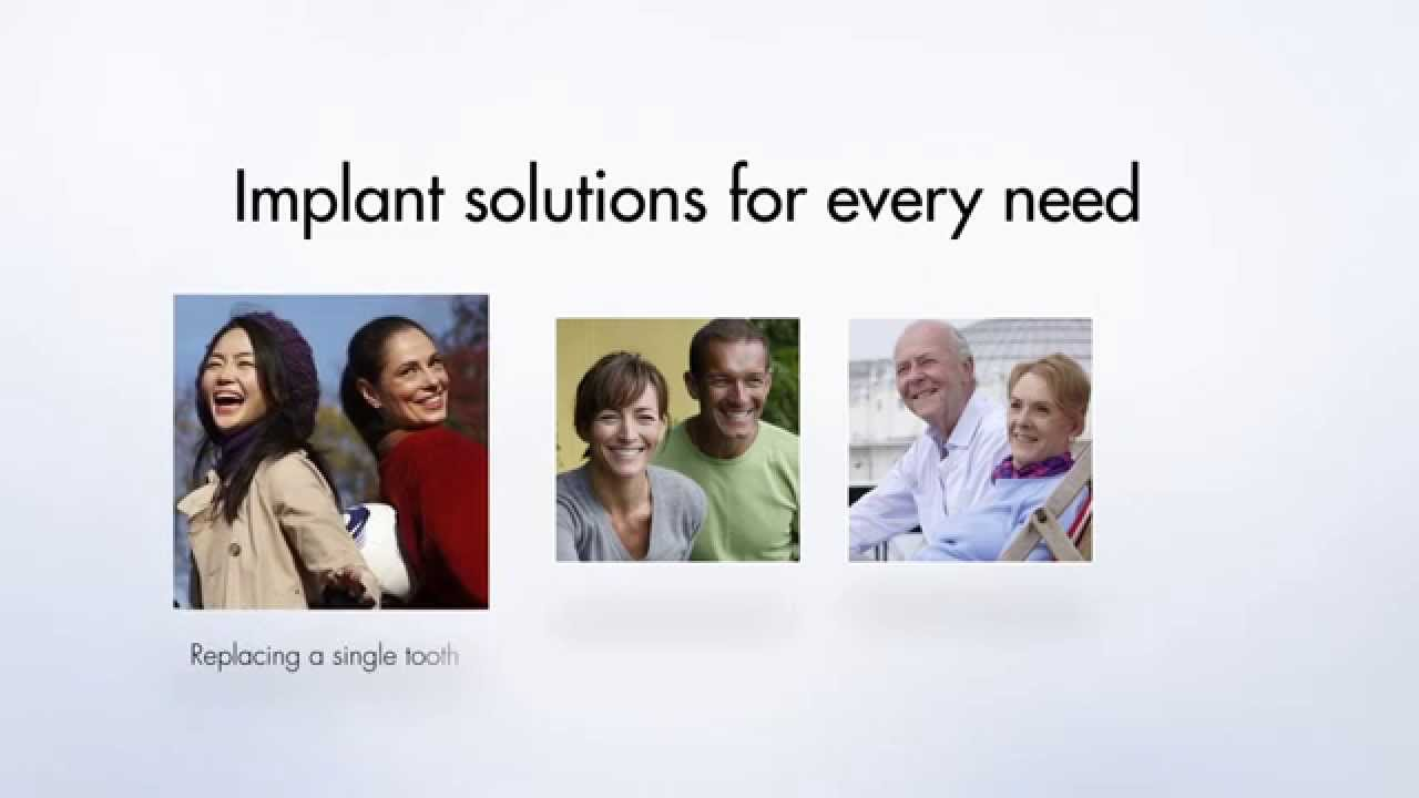 Implants What is a Dental Implants