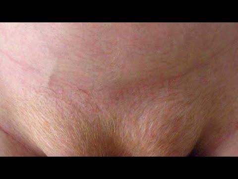 Laparoscopic Bilateral Inguinal Hernia Repair