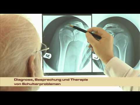 Schmerzen im unteren Rücken und Bauch auf dem in ulcerosa links