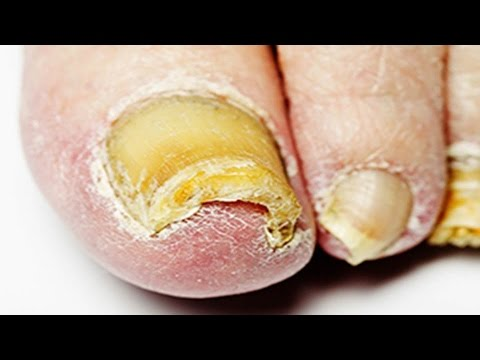 Onychomycosis nail treatment paghahanda review