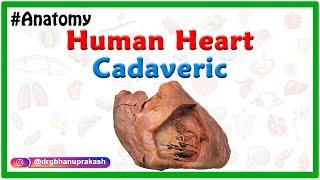 Human Heart Cadaveric Anatomy (Clinical Application) Apex, Base, Pulmonary sinuses, Coronary sulcus