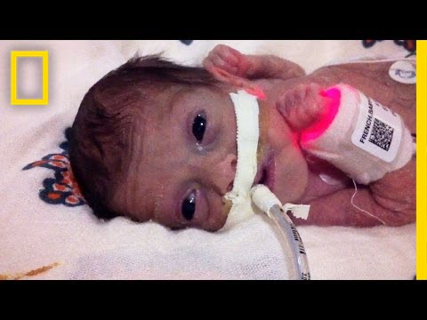 Born 4 Months Early, This Tiny Survivor Beats the Odds | Short Film Showcase thumbnail