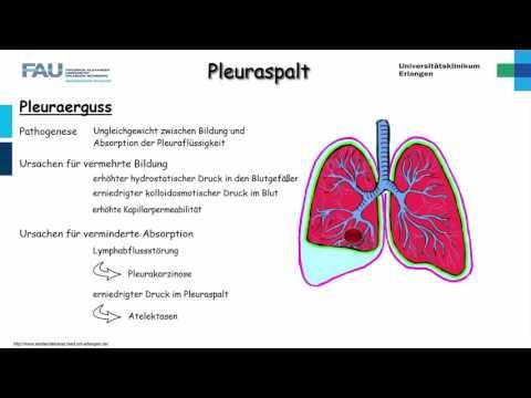 Hypertensive Diagnose krizy.printsipy. Behandlung