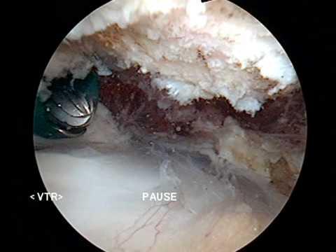 De ce durere în articulațiile șoldului