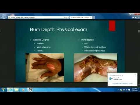 Burn Trauma - Parker Fillmore, MD