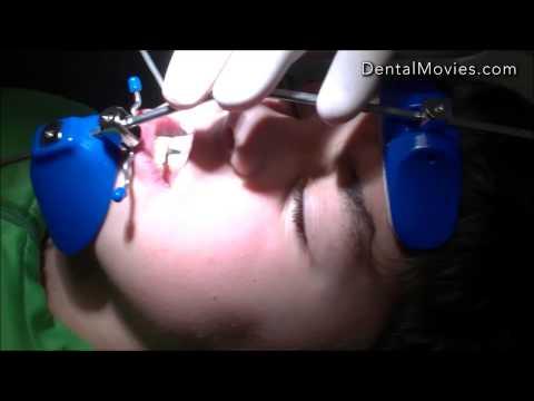 Cosmetic mga langis para sa dry skin batang