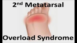 2nd Toe Pre-Dislocation Syndrome *Home Treatment*