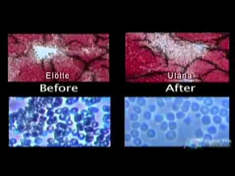 Lomflox prosztatagyulladás esetén