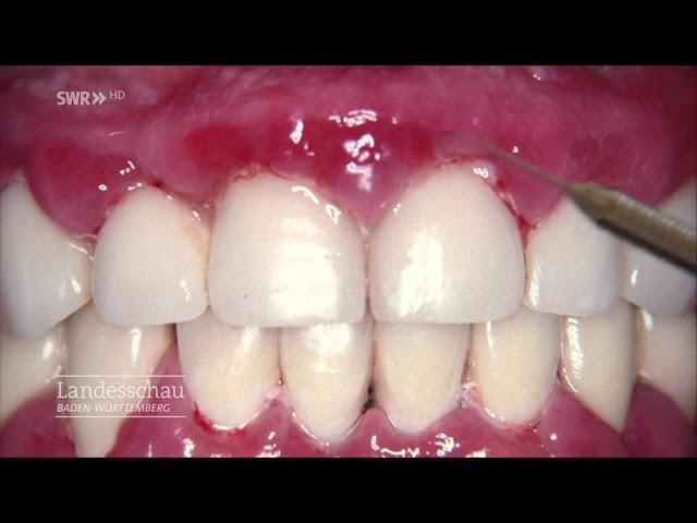 Schmerzhafte zahnfleischentzündung