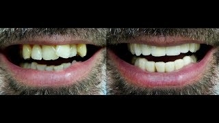 Never late to fix your crowded teeth!