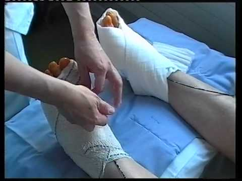 รักษากระแทกบนนิ้วเท้าใหญ่