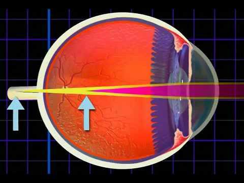 Látásélesség 0 05 mennyi