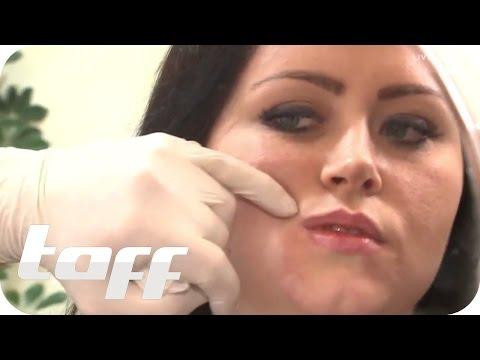 Gribok der Nägel der Abart und die Behandlung