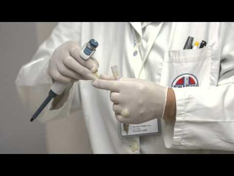 Comment detecter papillomavirus homme