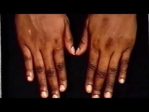 Steroidnyje die Salben für die Behandlung warikosnoj das Ekzem
