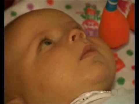 Симптомы гепатита у ребенка 4