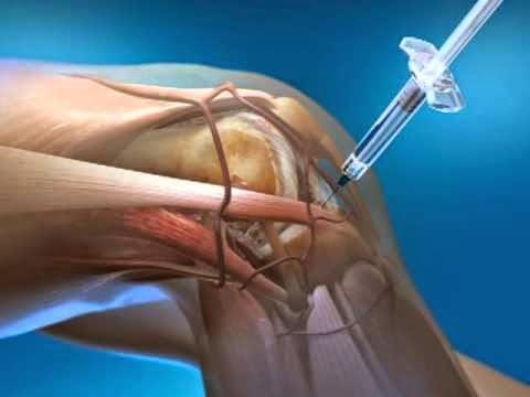 Fisioterapia con artrosis deformante de la articulación de la rodilla