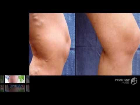 лечение варикоза по омс