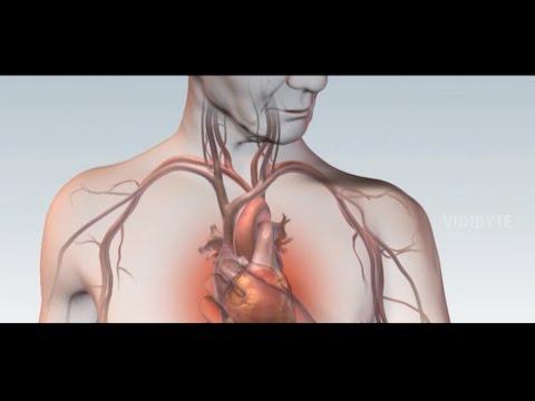 Izvlačenje up i hipertenzije