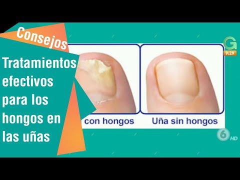 Los preparados para el tratamiento del hongo de los órganos interiores
