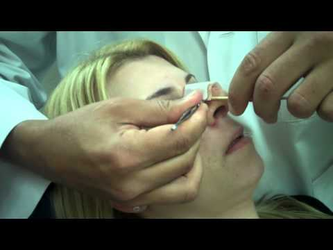 Dr. Jeffrey Epstein – Rhinoplasty Splint Removal 1 week Post Op – Female Patient