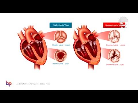 Direitos da Pessoa Idosa - Doenças das válvulas cardíacas e formas de mitigá-las - 04/12/19 - 14:36