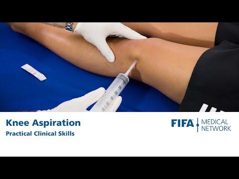 A jobb láb tarsusának ízületei artrózisa