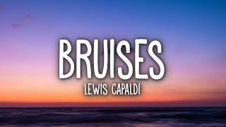 Lewis Capaldi   Bruises (Lyrics)