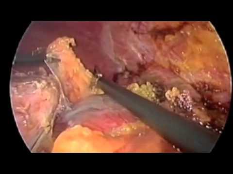 Consolidazioni in un reparto di petto posteriore