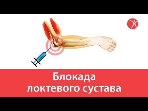 Блокада локтевого сустава в клинике Стопартроз