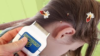 The Best Way to Remove Lice? Honest RobiComb Review